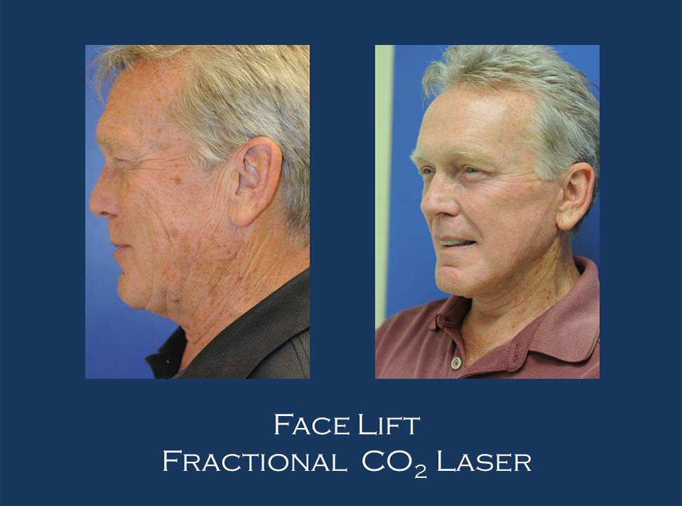 Before and After | Dahiya Facial Plastic Surgery and Laser